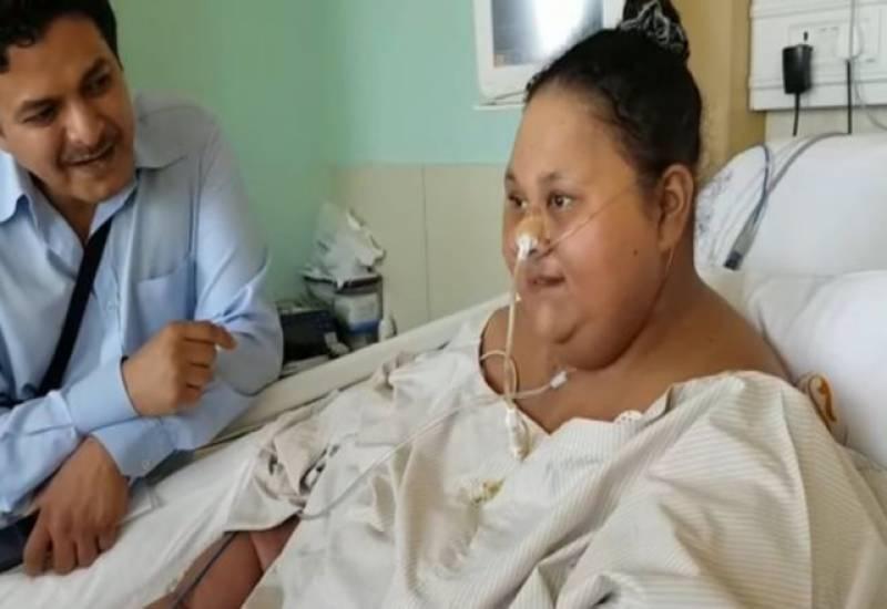 دنیا کی سب سے موٹی مصری خا تون کا سرجری سے 250 کلو وزن کم ہوگیا۔