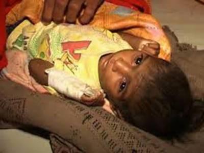 تھرپارکر میں موت کا رقص جاری ہے،،،آج سول ہسپتال مٹھی میں دو روز کی بچی انتقال کر گئی،، غذائی قلت کے باعث دو ماہ کے دوران اکیاسی بچے دم توڑ گئے۔