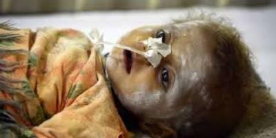 تھرپار میں غذائی قلت پھر سے معصوم بچوں کی جانیں نگلنے لگی