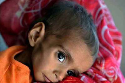 One More Fall Prey To Famine in Tharparkar, toll reaches 303