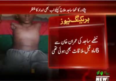 پشاور کا ننھا ساجد علاج کیلئے اب بھی امداد کا منتظر