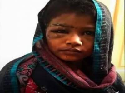 تشدد کا شکار ہونے والی طیبہ کا اصل نام ثنا ء ہے جو 2سال قبل رشتے داروں کو ملنے فیصل آباد جانے پر اغوا ہوگئی