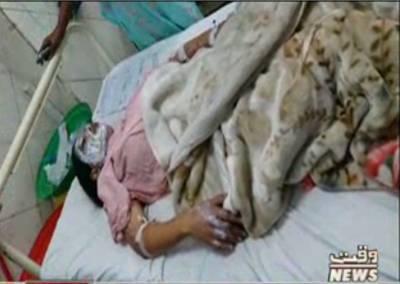 لڑکے نے منگیتر پر تیزاب پھینک دیا، تیزاب گرنے سے لڑکی کا چہرہ9فیصد جبکہ جسم30 فیصد تک جھلس گیا