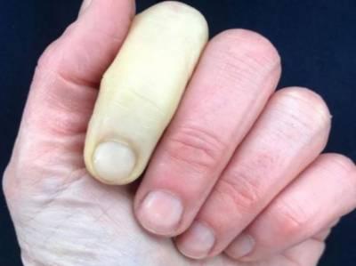 برطانیہ کی معروف خاتون ٹی وی میزبان جینی فالکنر نے شریانوں کے مرض سے زرد پڑ جانے والی انگشت کی تصویر شیئر کی جسے دیکھ کر لوگ حیران رہ گئے۔