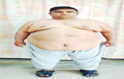 میاں چنوں کے سب سے موٹے شخص کا آج لاہور میں آپریشن ہوگا، وزن 184 کلو ہے