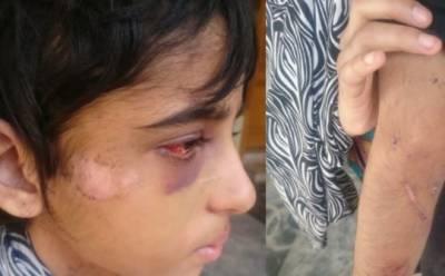 مالک اور مالکن کنزہ کو 2 سال سے تشدد کا نشانہ بنا رہے تھے، بہن کا دعویٰ