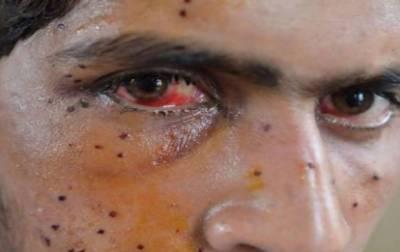 کشمیر میں انسانی حقوق کی خلاف ورزیوں پر اقوام متحدہ کی رپورٹ