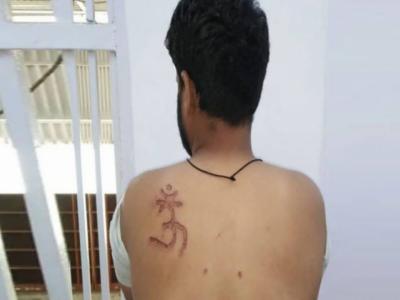 بھارت کی تہاڑ جیل میں جیلر کا مسلمان قیدی پر ہندو مذہب قبول کرنے کیلئے تشدد، پشت پر دیوتا کا نام داغ دیا
