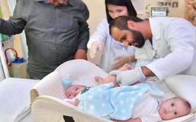 جسمانی طور پرآپس میں جڑے دو بچوں کا سعودی عرب میں آپریشن