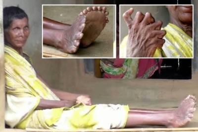ہاتھوں میں 12 اور پاوں میں 19 انگلیوں والی 63 سالہ بھارتی خاتون کا خوف