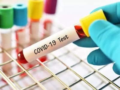 پاکستان:برطانیہ سے آئے 3 افراد میں نئے کورونا وائرس کی تصدیق