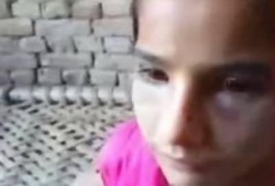 10 سالہ ملازمہ پر تشدد: ملوث مالکن اور اس کے شوہر کیخلاف مقدمہ درج