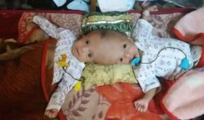 شاہ سلمان کا جسمانی طور پر جڑے یمنی بچوں کو علاج کے لیے سعودی عرب منتقل کرنے کی ہدایت